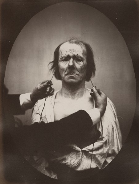 DUCHENNE DE BOULOGNE and Adrien TOURNACHON (French, 1806-1875 & 1825-1903),  Profound suffering, with resignation, 1862, negative, circa 1856, Albumen print from a glass negative, 22.4 x 16.6 cm oval